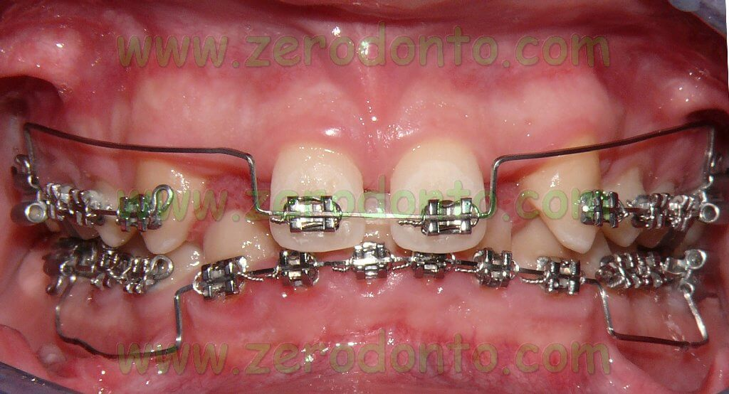 Pre-surgical orthodontic treatment