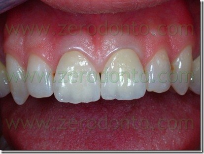 dente11inceramicabis_thumb2