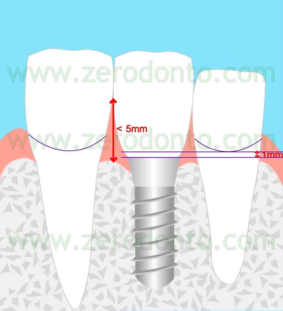 implant esthetic