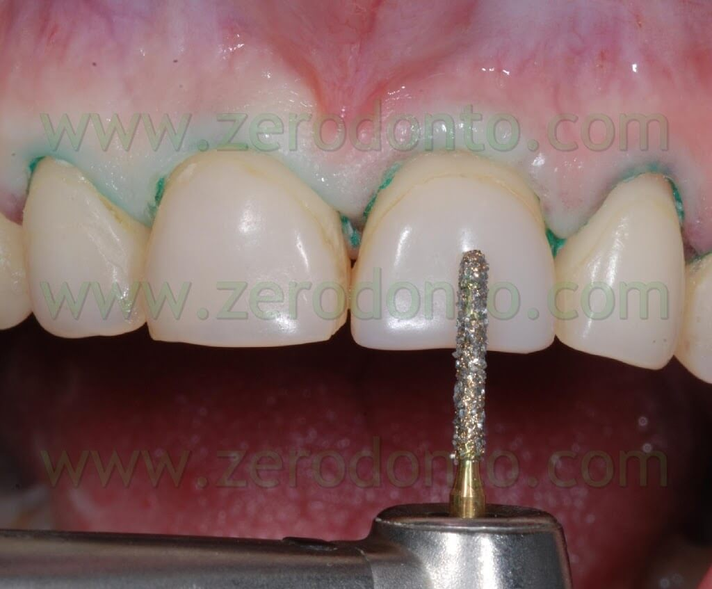 buccal preparation