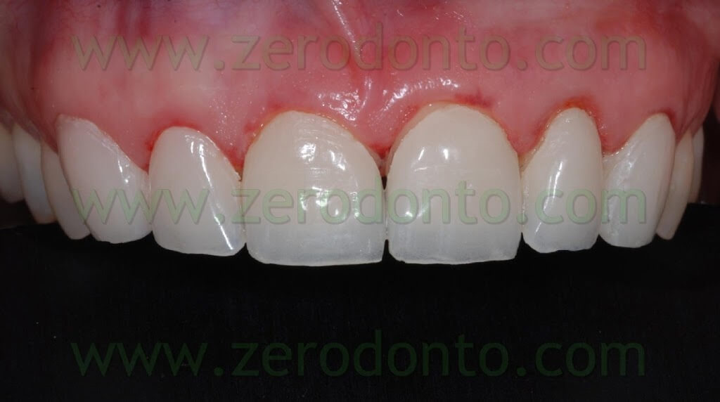 veneers temporarization