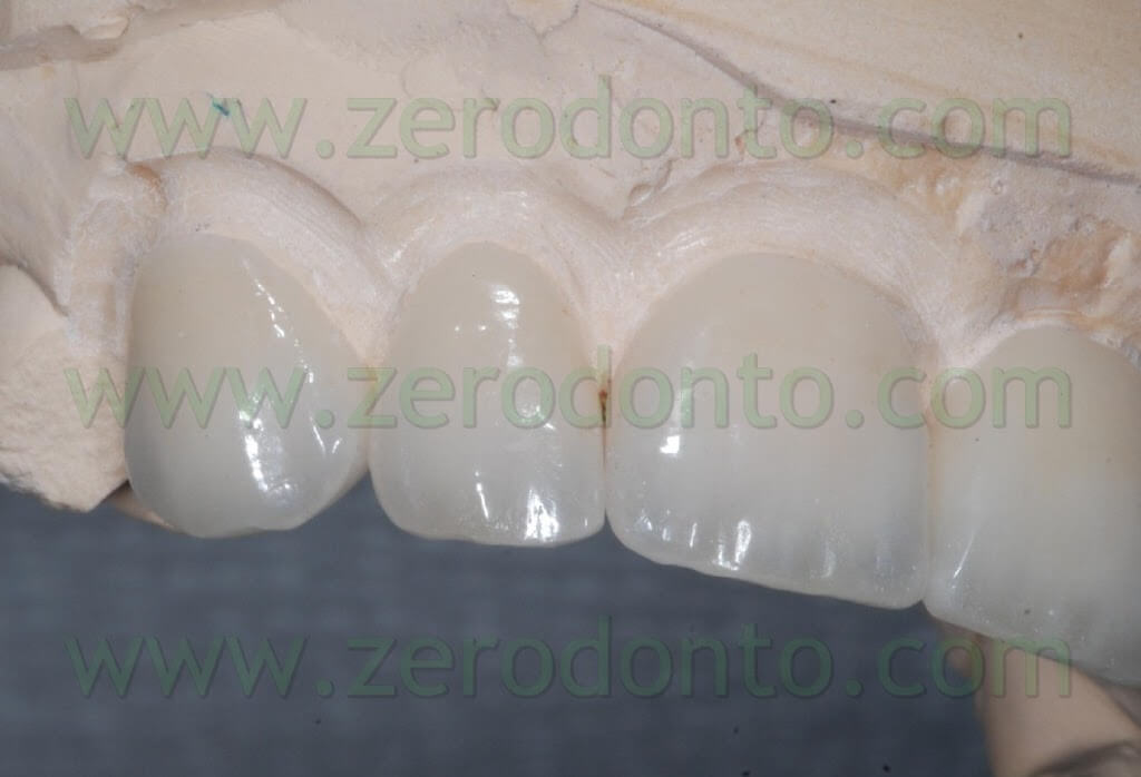 dentin mass ceramic