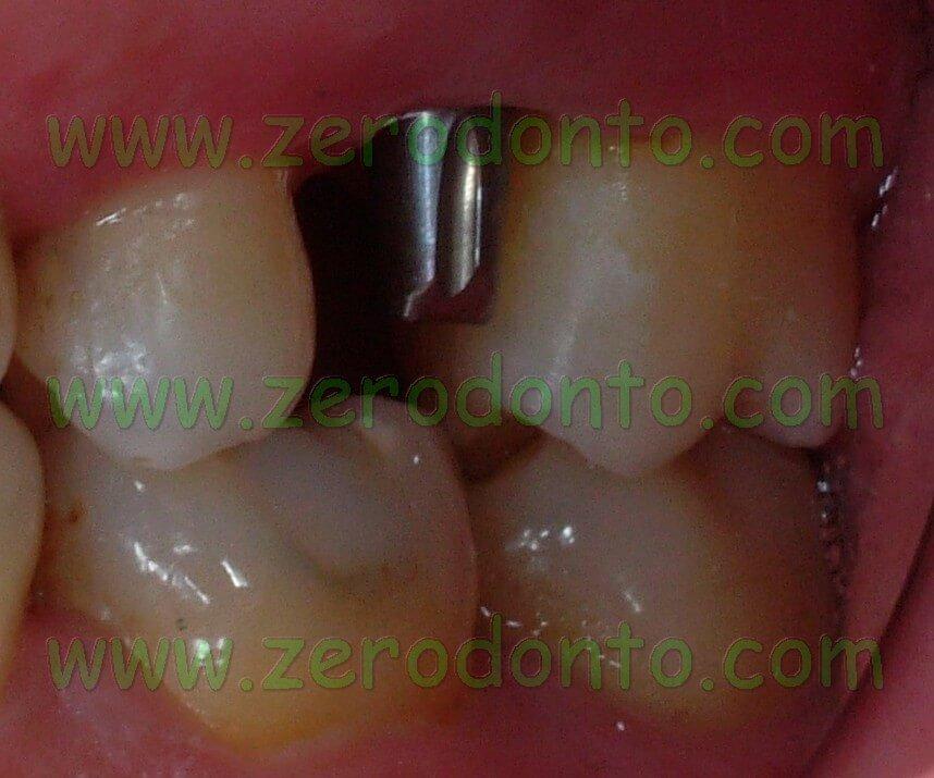 Implant preparation