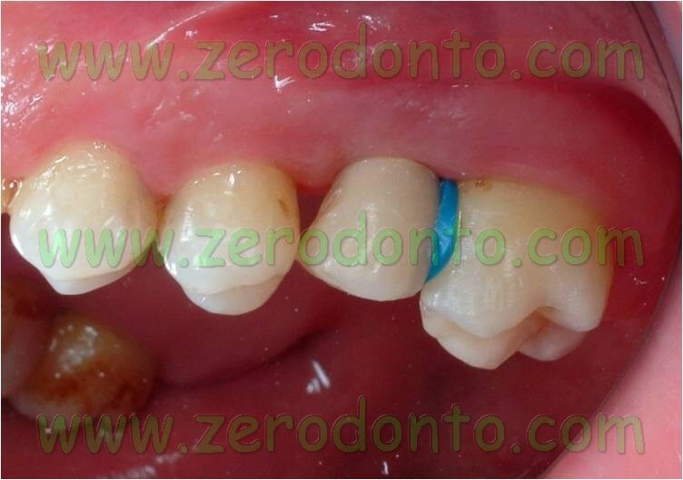 Orthodontic elastic