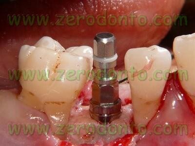 Implant mount