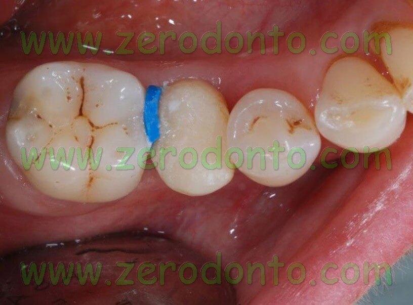 Implant premolar