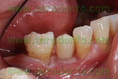 Lower premolar