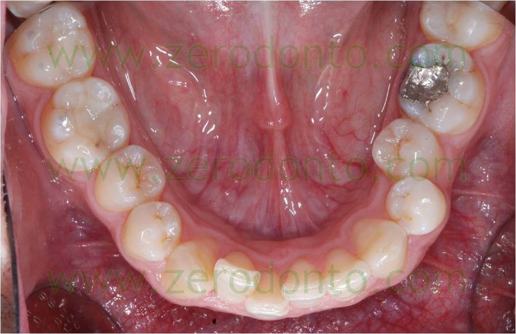 before bracketless fixed orthodontic