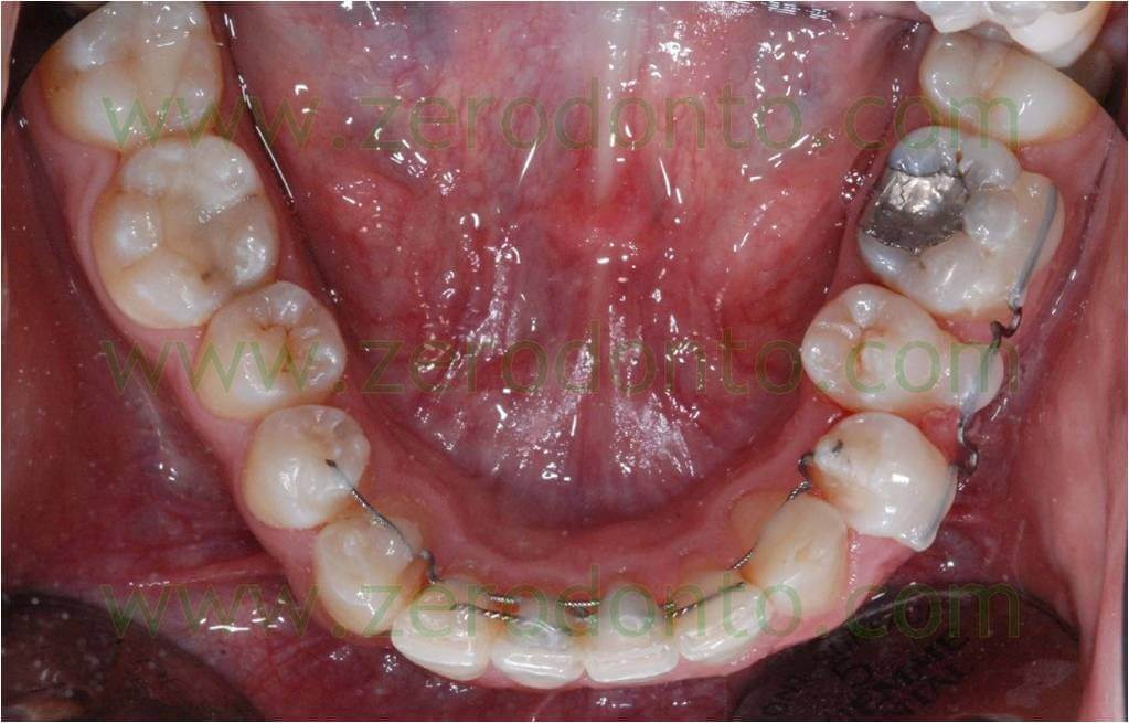 invisible orthodontic