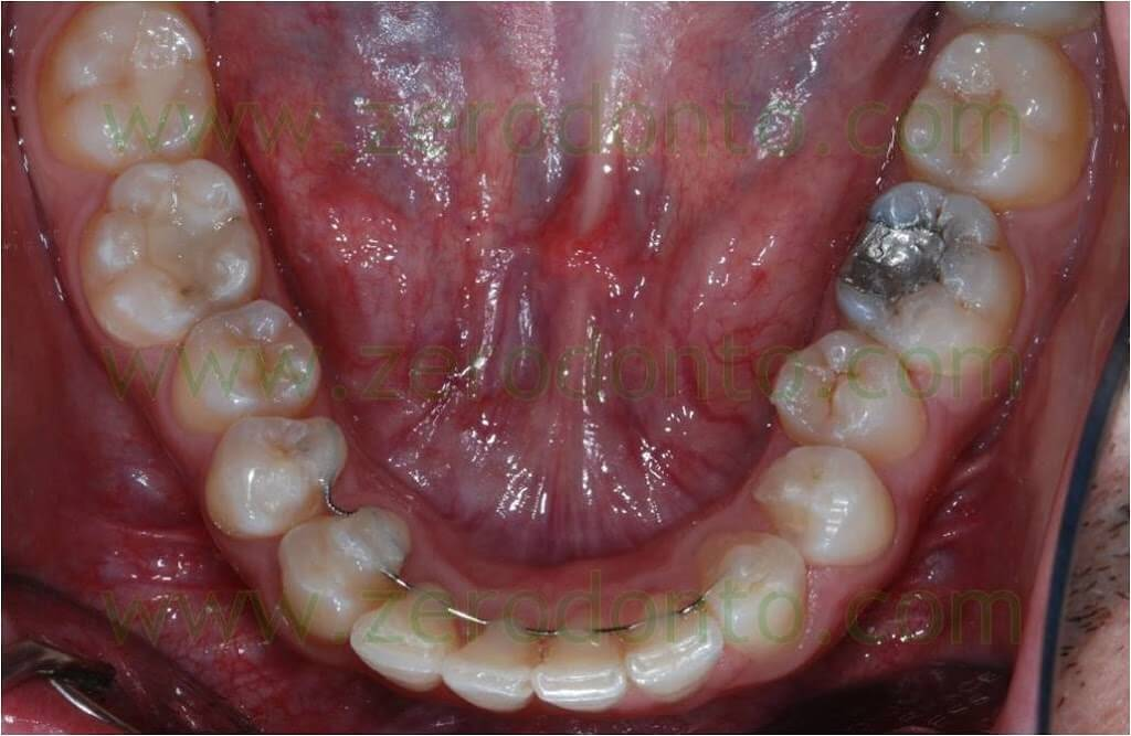 teeth leveling without pain