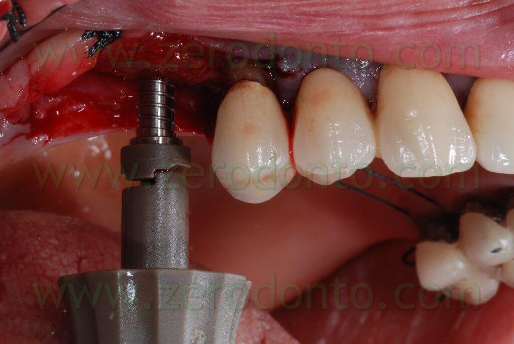 Mini maxillary sinus elevation using Sincrest