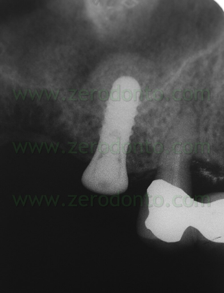 Implant sinus minilift