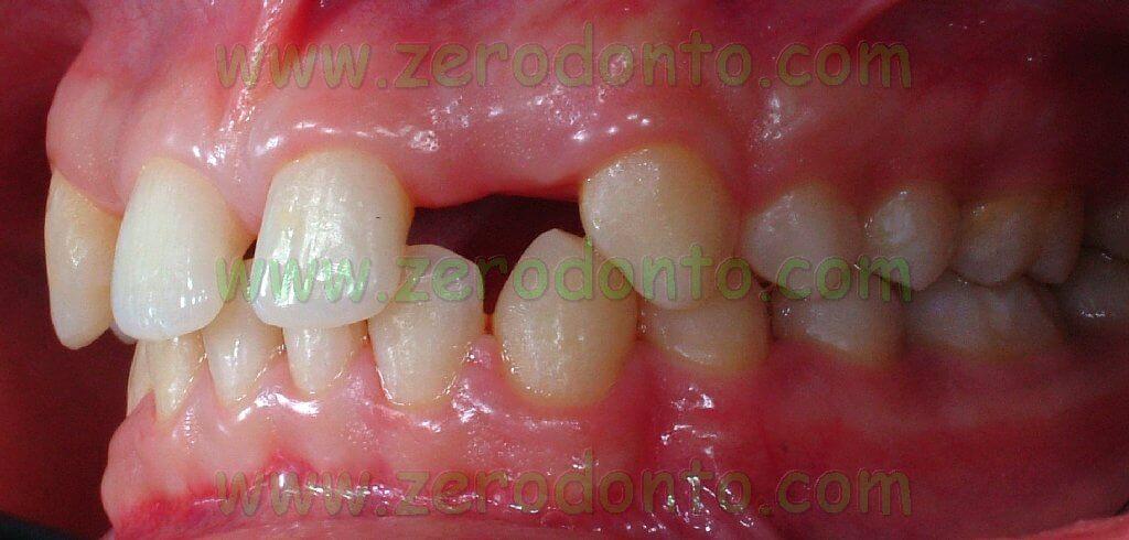 lateral agenesis implant straumann bone level etkon zirconia