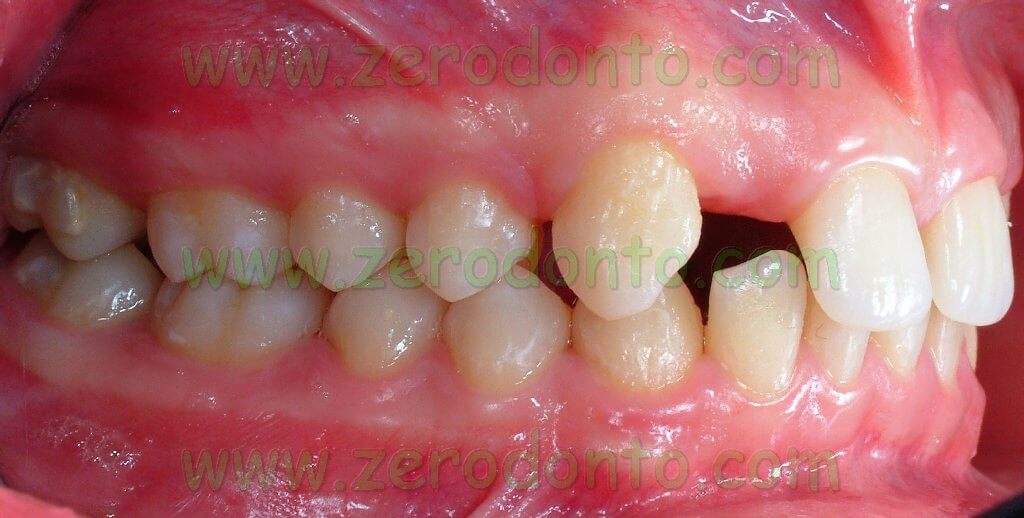 lateral incisor agenesis