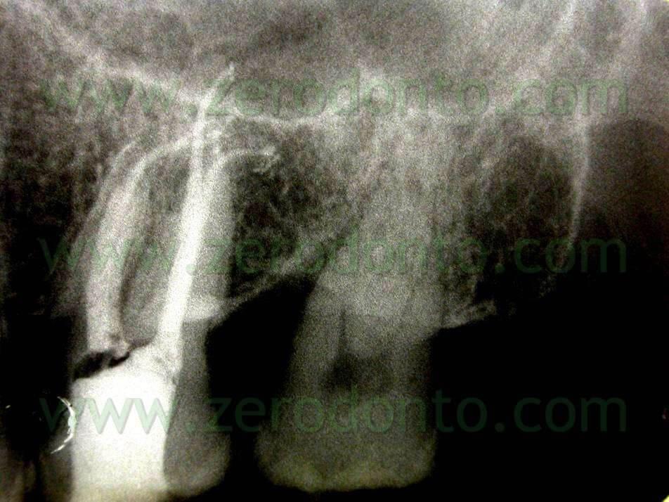 molar canals