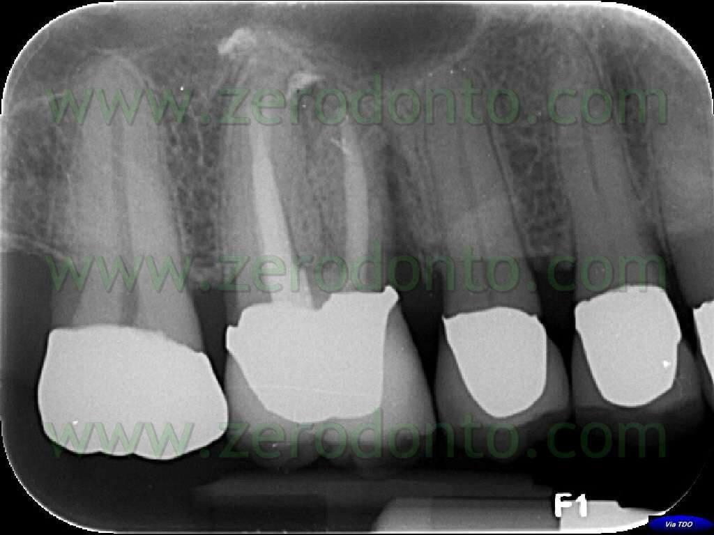 endodontics buchanan