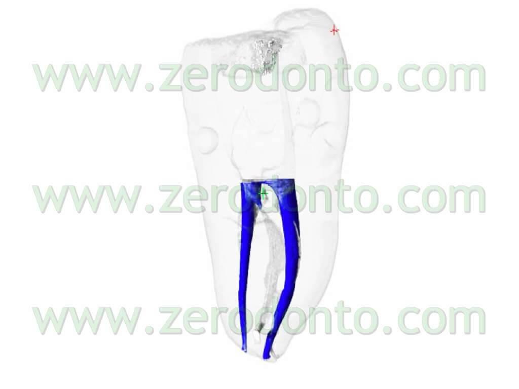 endodontics vertical