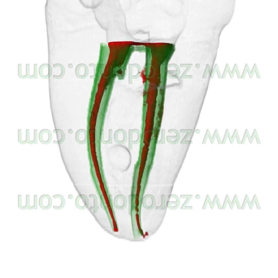 endodontics lateral