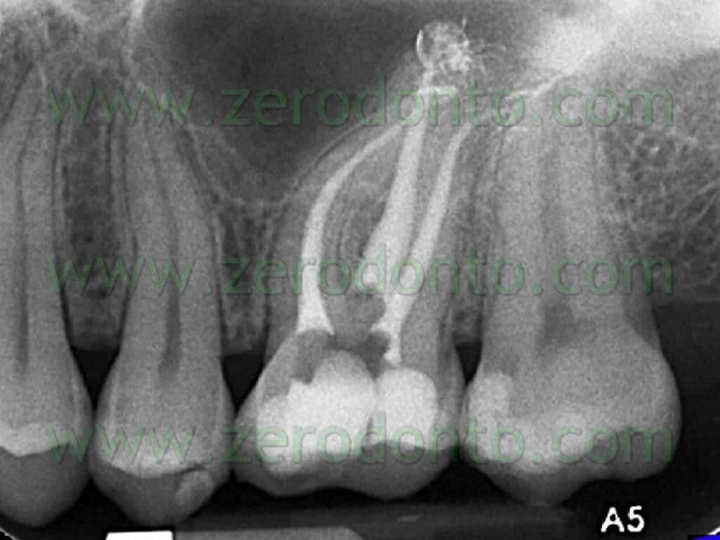 molar endodontics