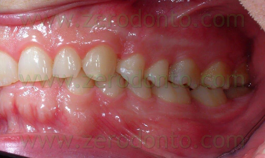 Angle firts dental class