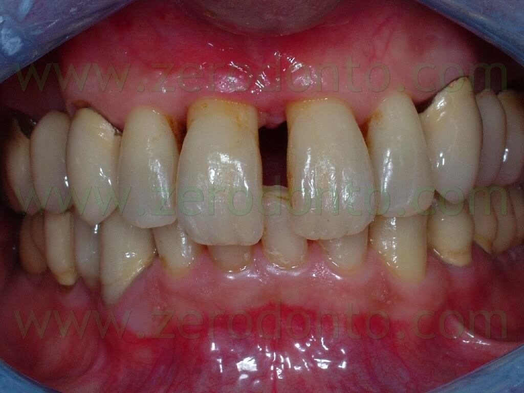 Prosthetic treatment in Esthetic zone with all-ceramic procera zirconia abutment and crown supported by a SLActive Straumann implant