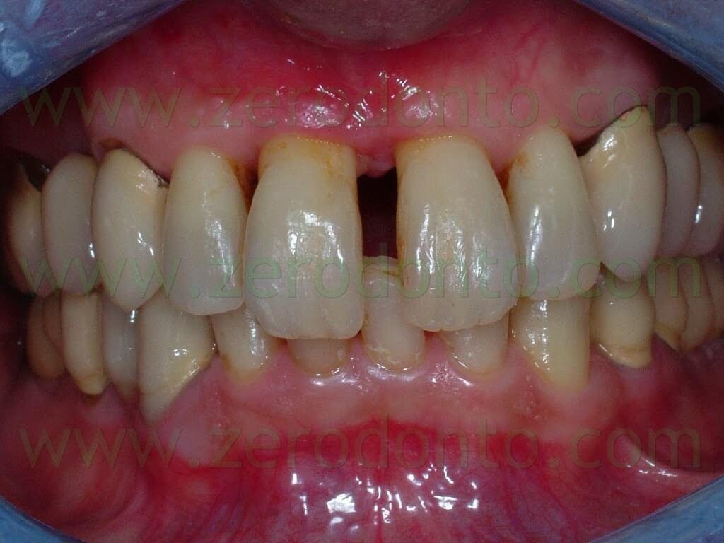 incisor diastema