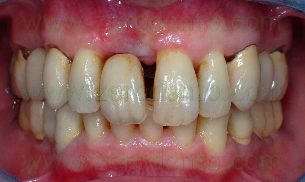 maxillary diastema