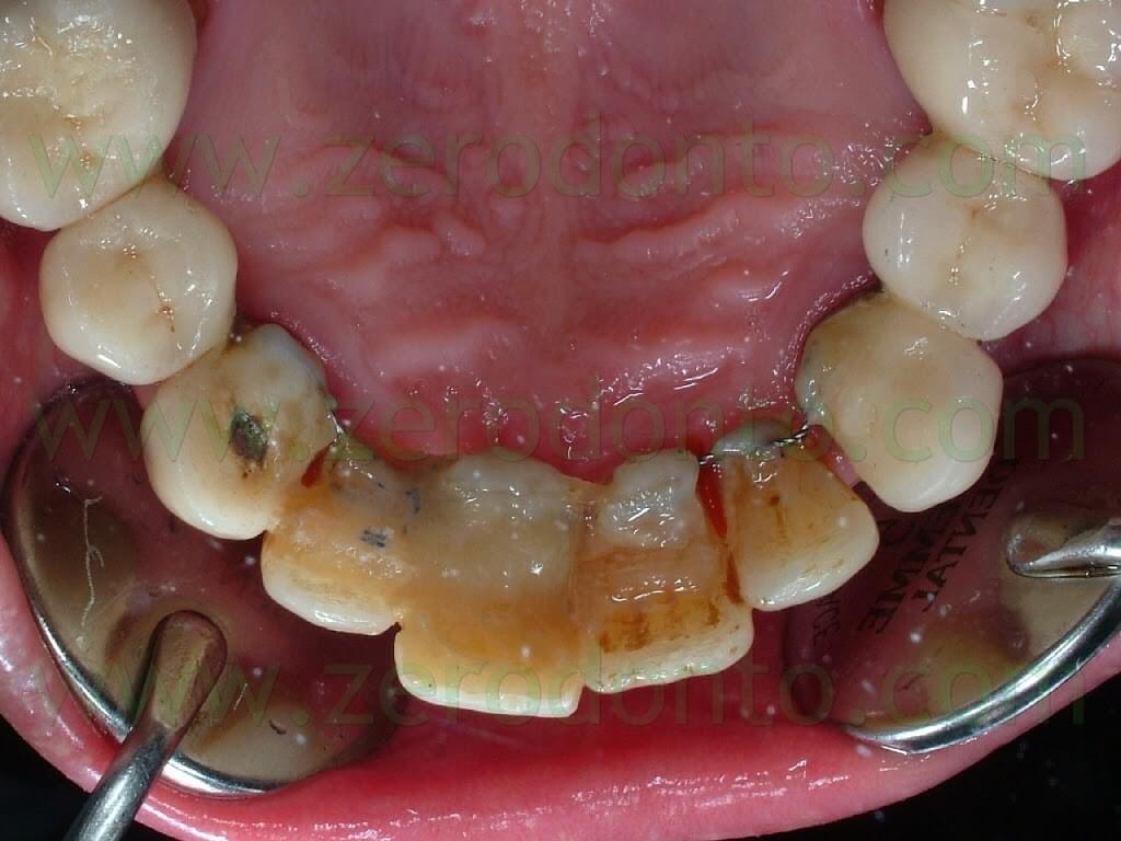 implant retainer
