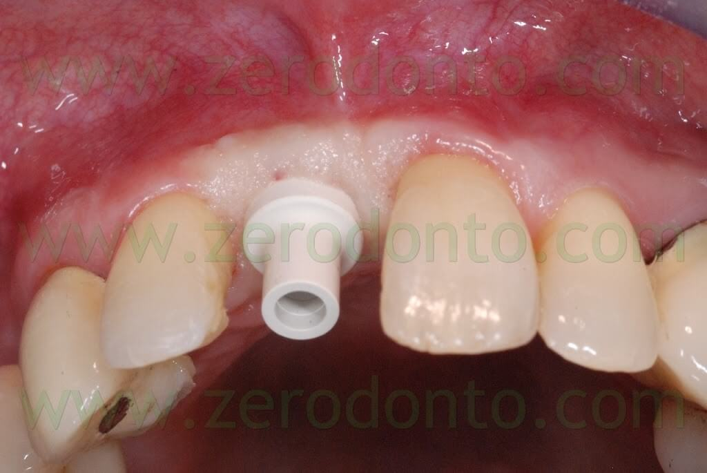 implant temporary abutment straumann