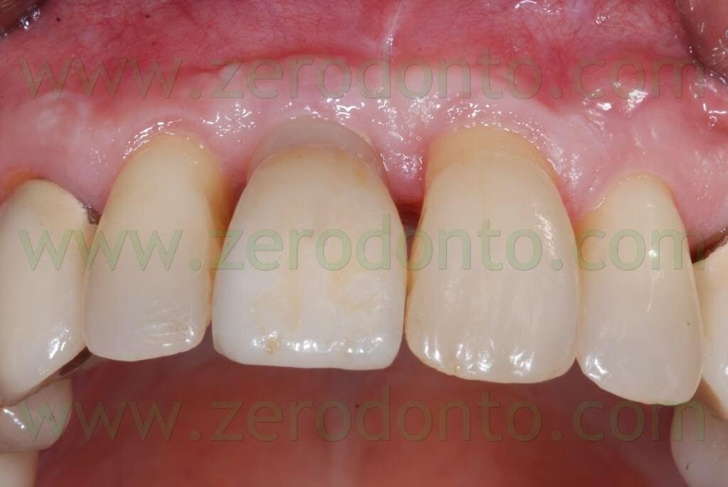 incisor implant