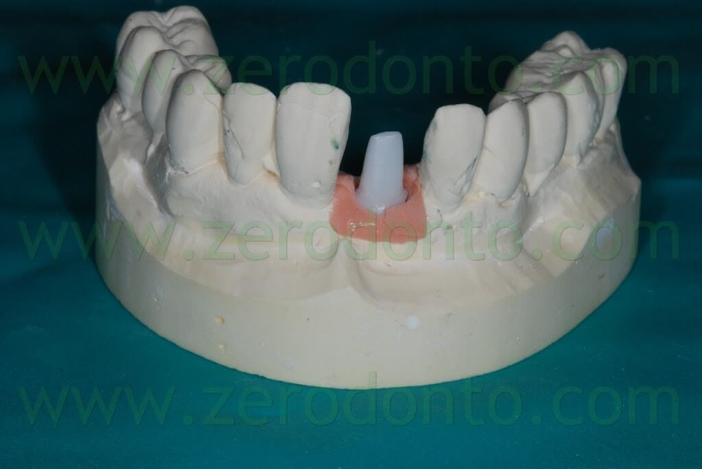 all-ceramic abutment
