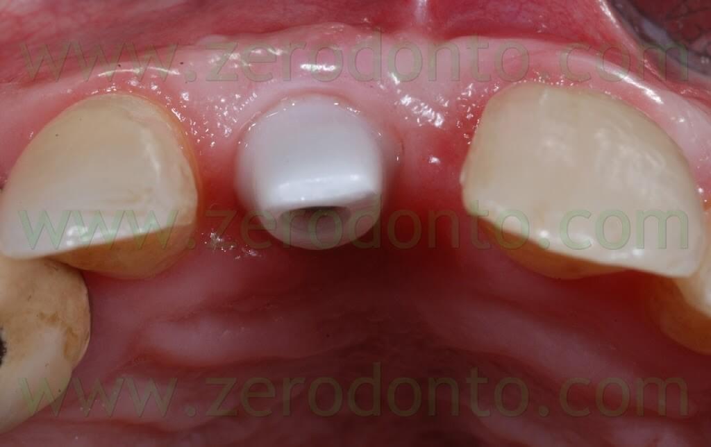 zirconia implant