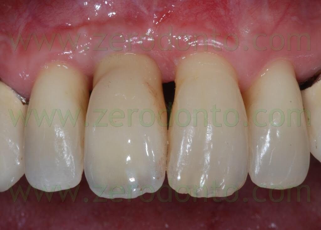 implant esthetic zone