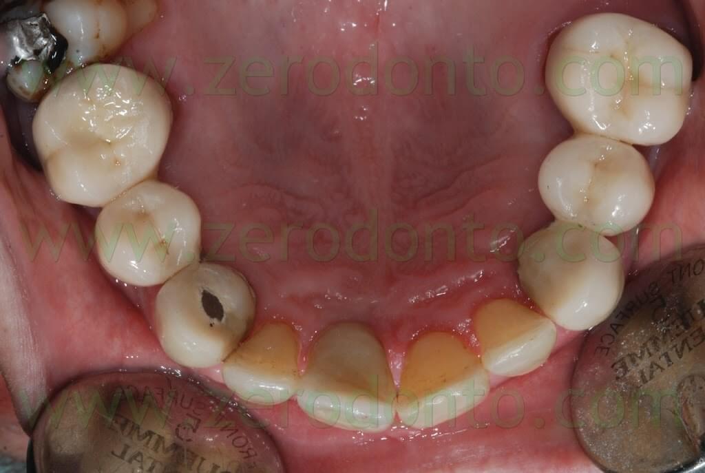 anterior implant