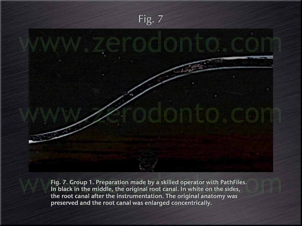 endodontic flaring