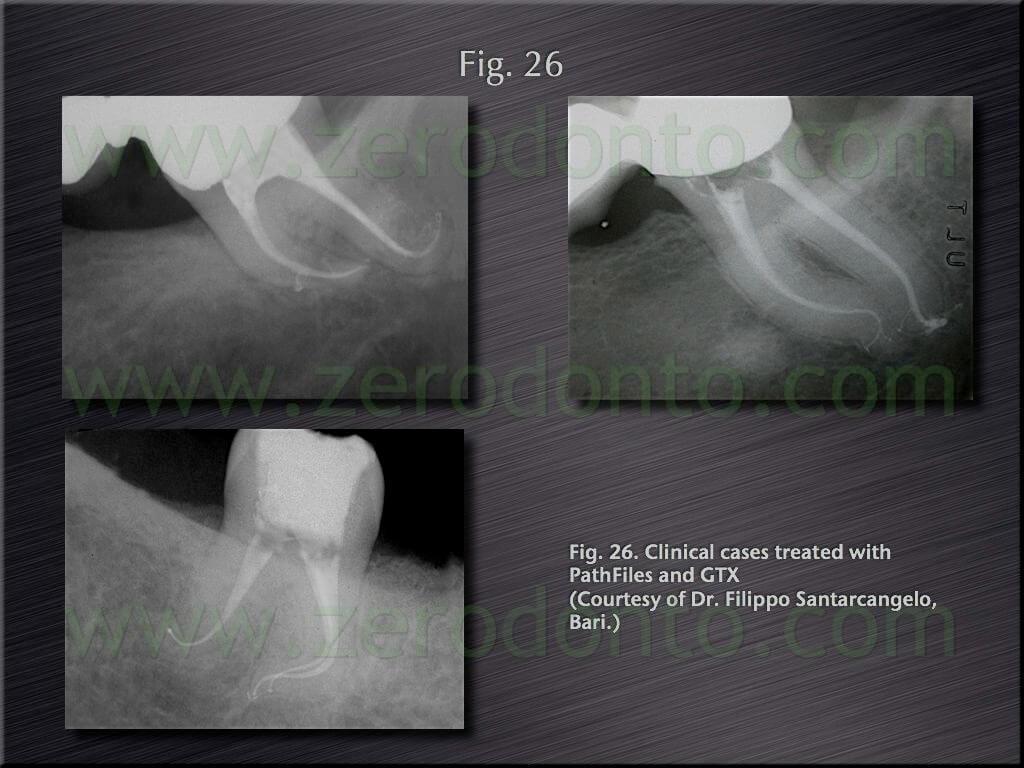 endodontics berutti