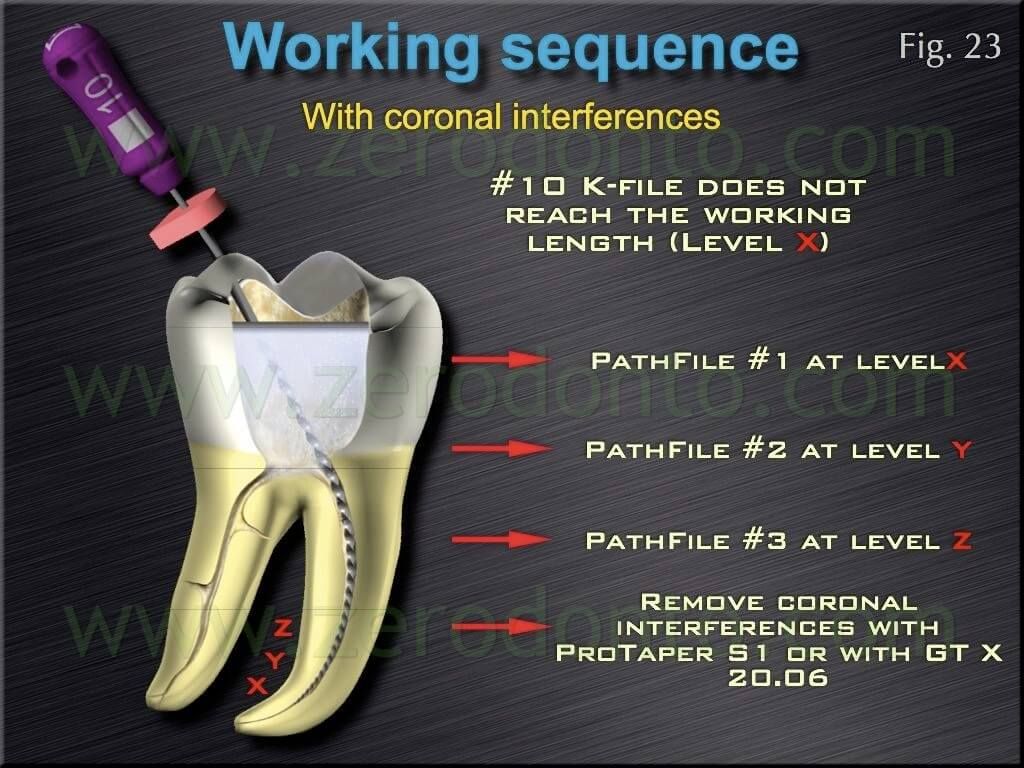 root canal obstacle