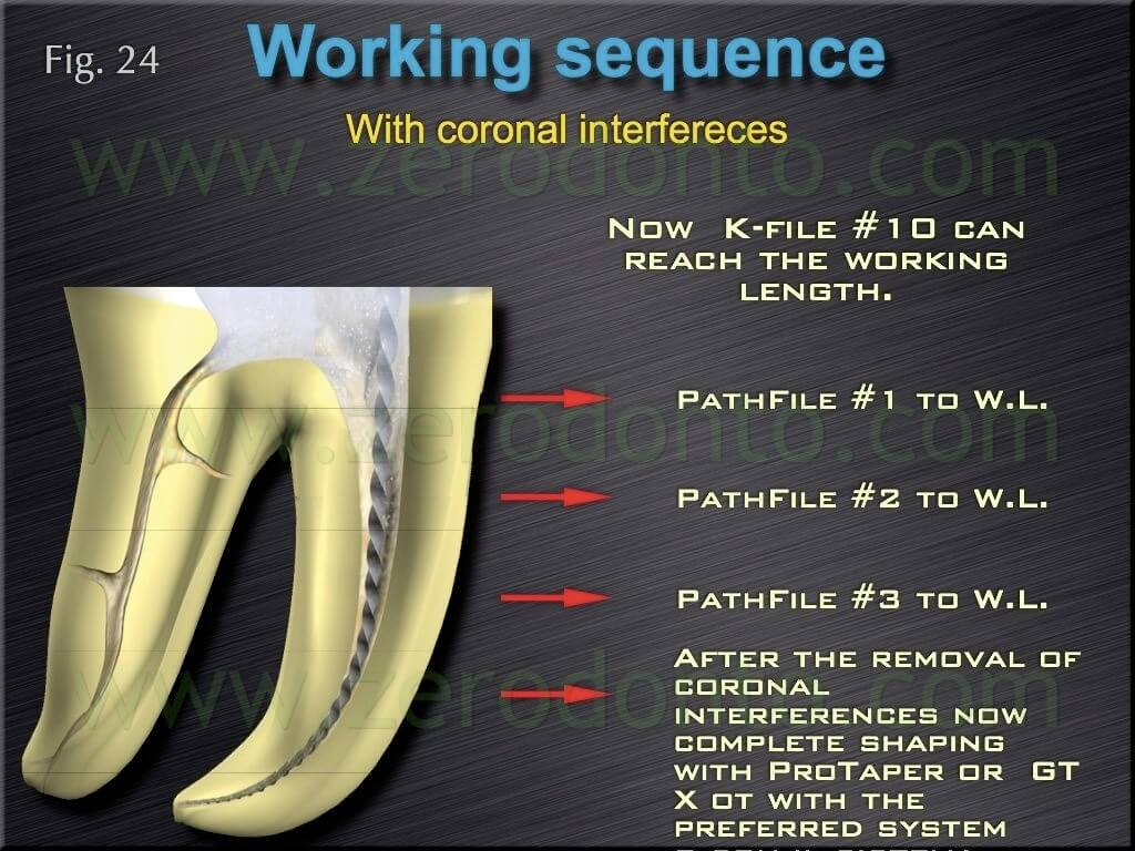 crown interference endodontic