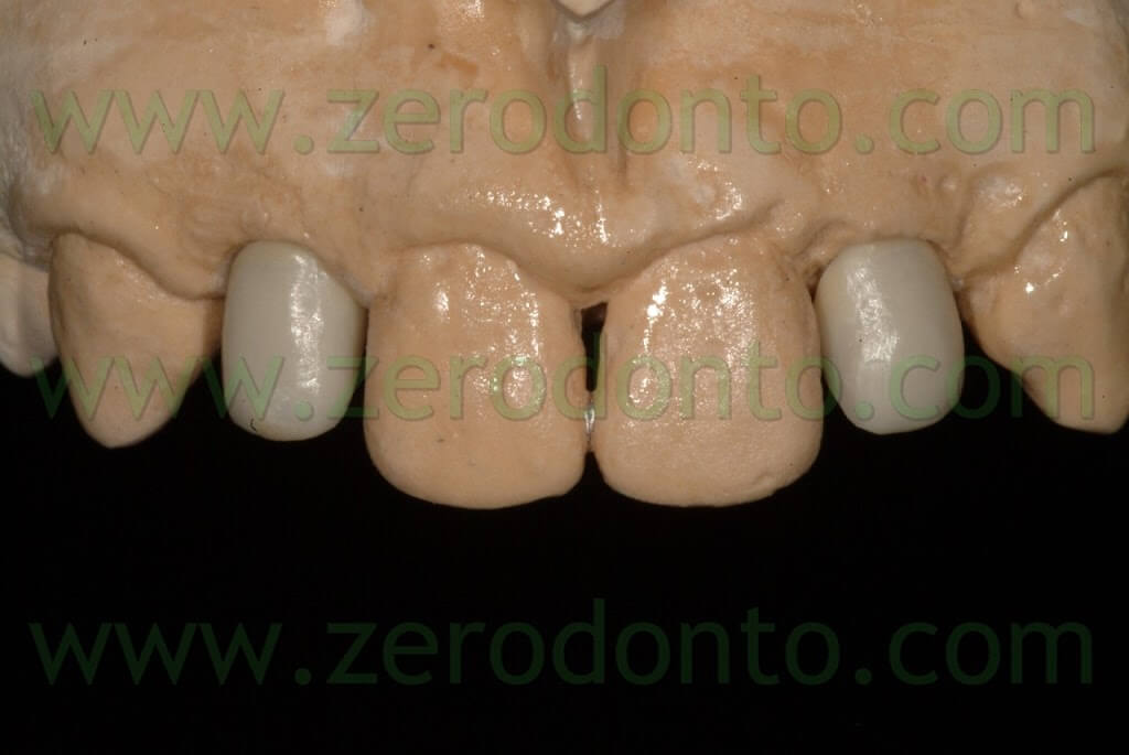 ceramic dedicated zirconia