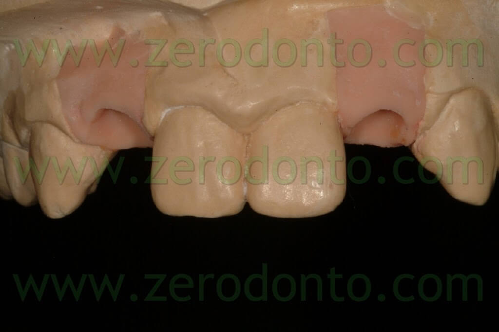 implant wax up