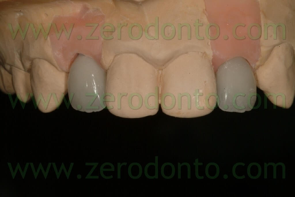 ceramic zirconia crown