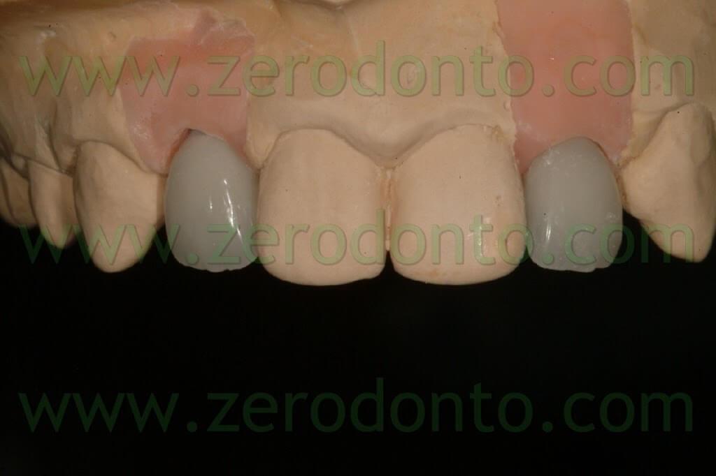 ceramic zirconia crown