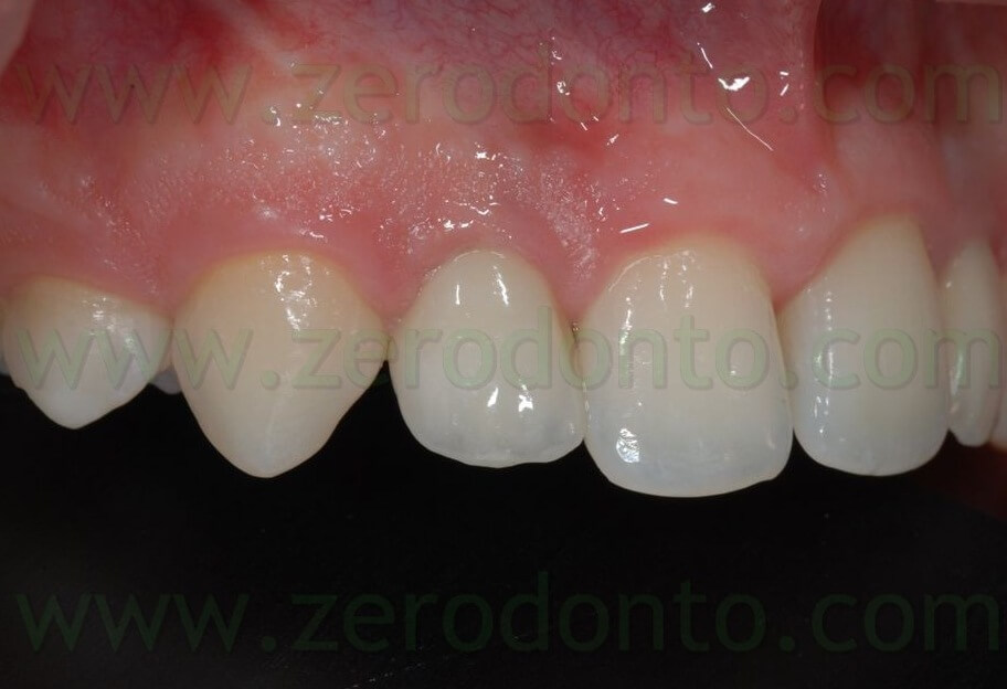 all ceramic implant crown 2
