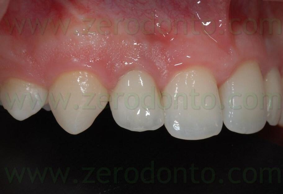 all ceramic implant crown 2
