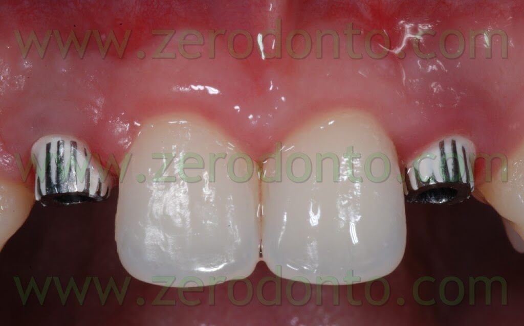 implant temporary abutments