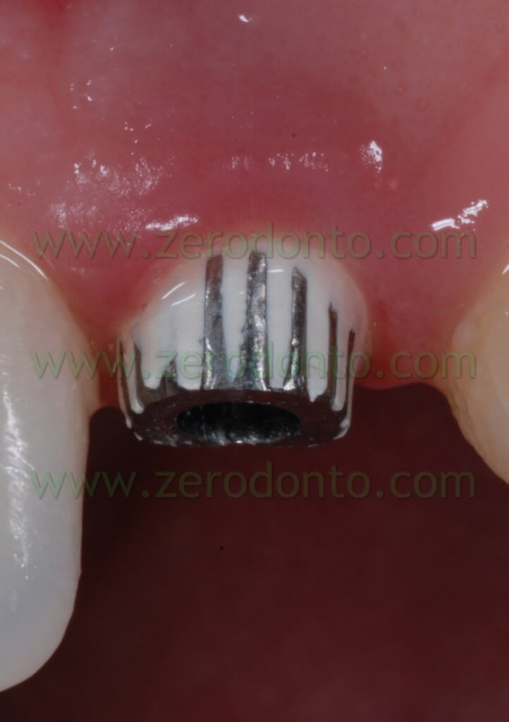 implant provisional abutment