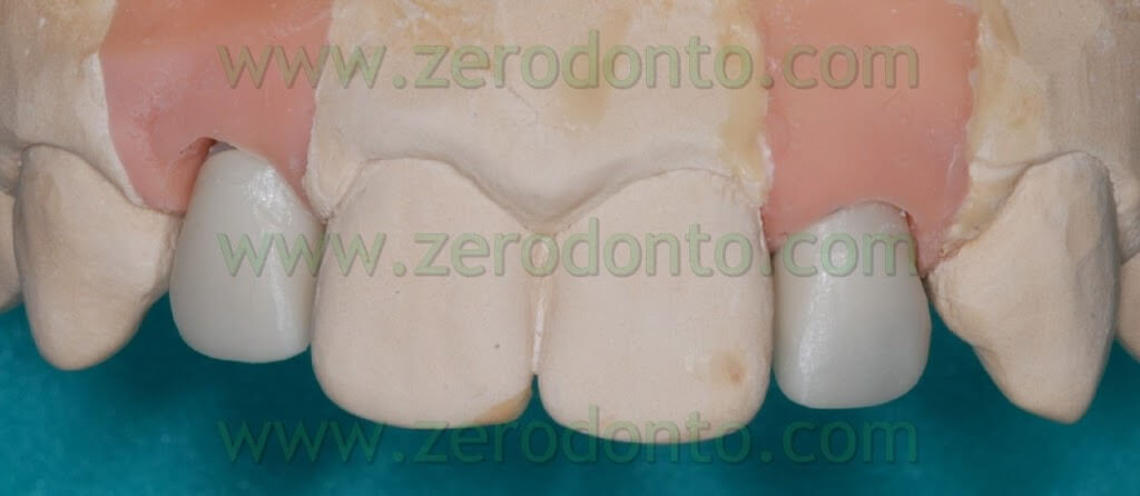 implant wax up 2