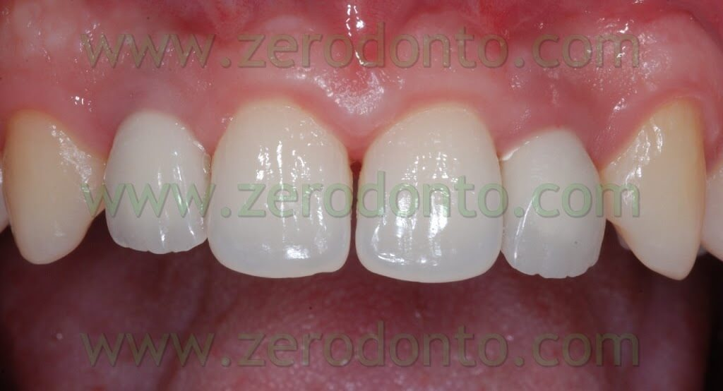 zirconium try in