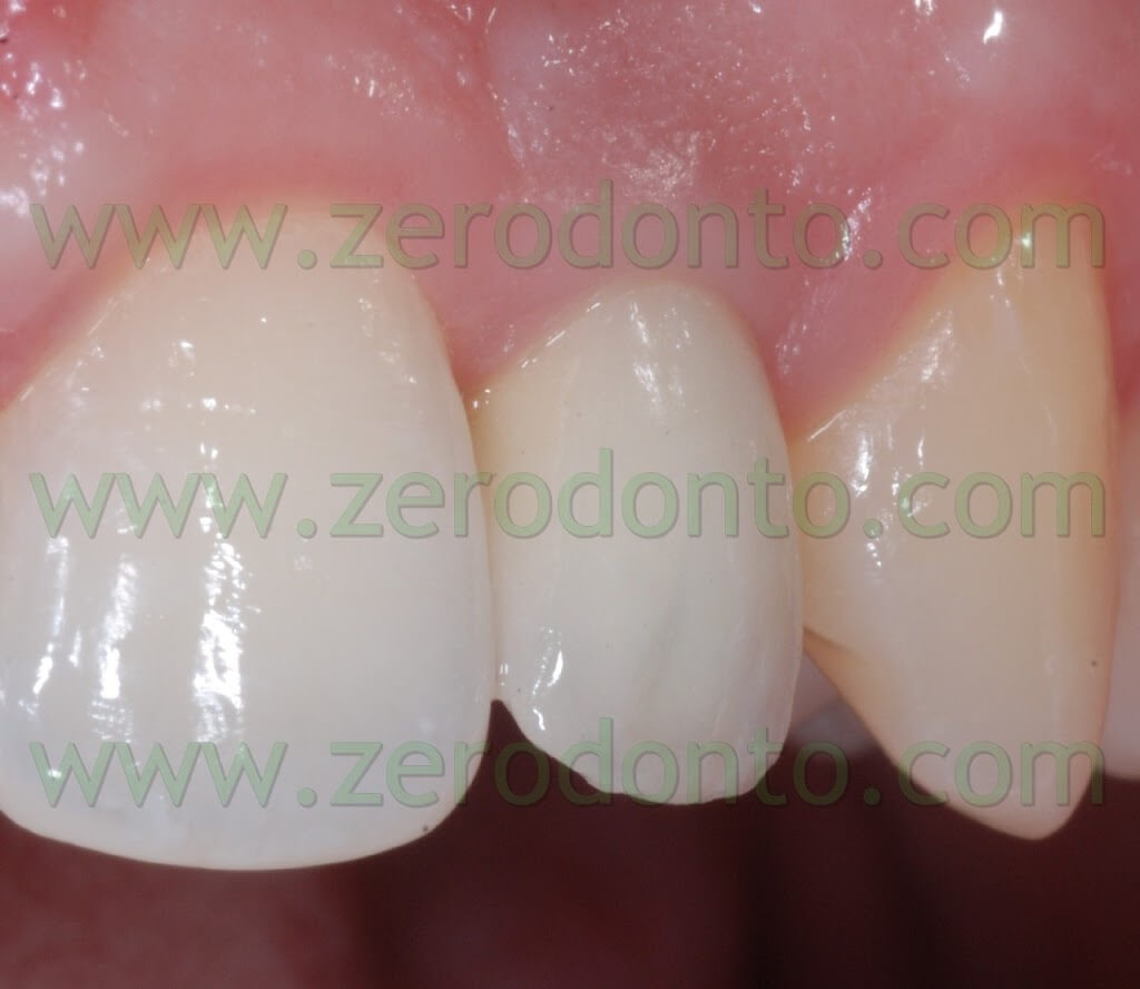 implant-supported zirconia crown