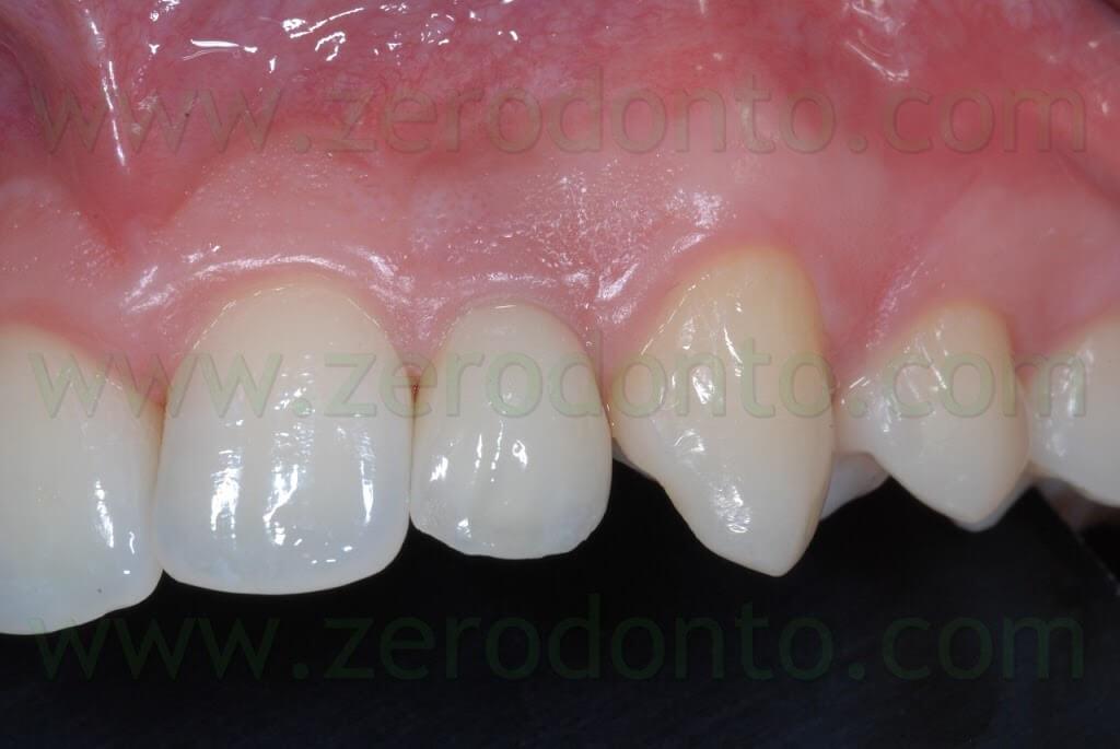 zirconium dioxide crown